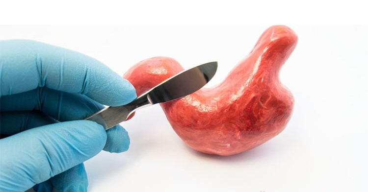درمان سندرم دامپینگ با جراحی