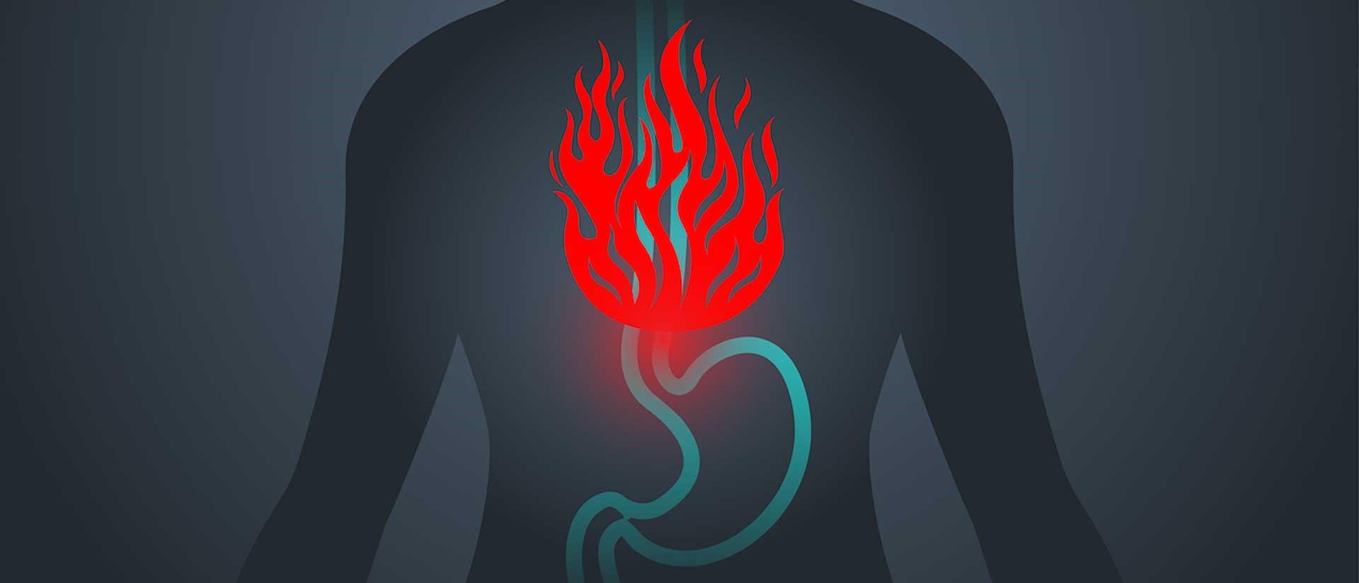 درمان بازگشت اسید