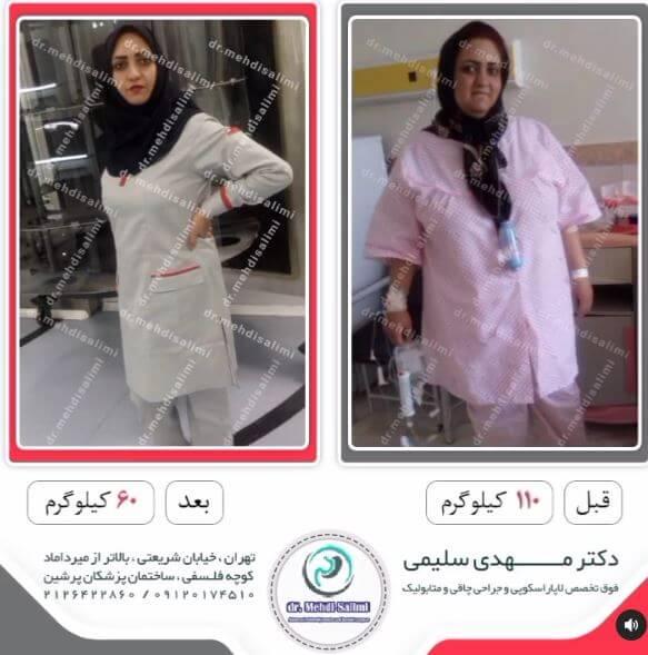 عکس قبل و بعد از جراحی چاقی