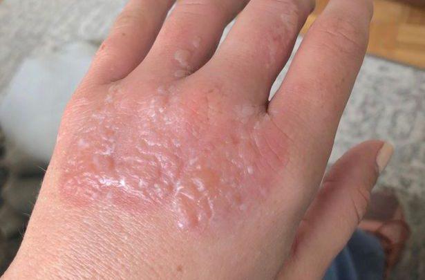 چند درصد احتمال ابتلا به عفونت به علت سوختگی وجود دارد؟