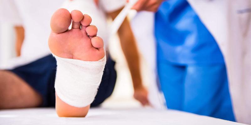 چه عواملی در زخم شدن پای دیابتی ها تاثیر گذار است؟