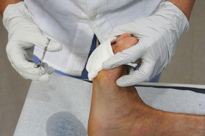 درمان سوختگی بیماران دیابتی در خانه