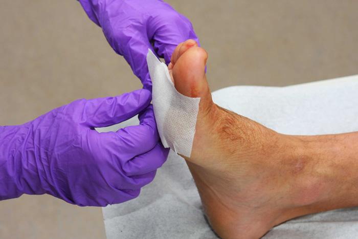 شناسایی زخم پای دیابتی ها چگونه است؟