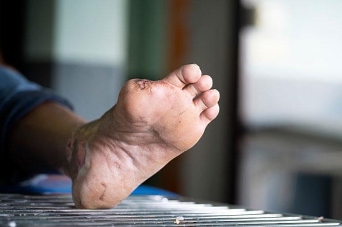 گرید بندی زخم پای دیابتی ها ساده