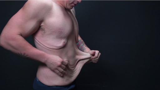 آیا افتادگی، حاصل شل شدگی پوست است یا بافت های چربی سرسختی است که در زیر پوست باقی مانده است؟