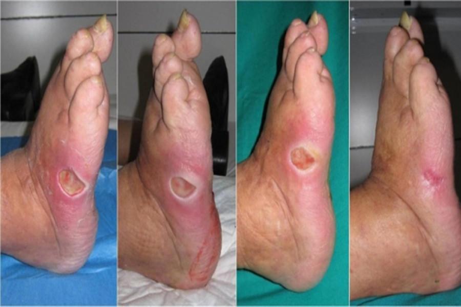 در صورت ایجاد عفونت زخم پا باید چکار کنیم؟