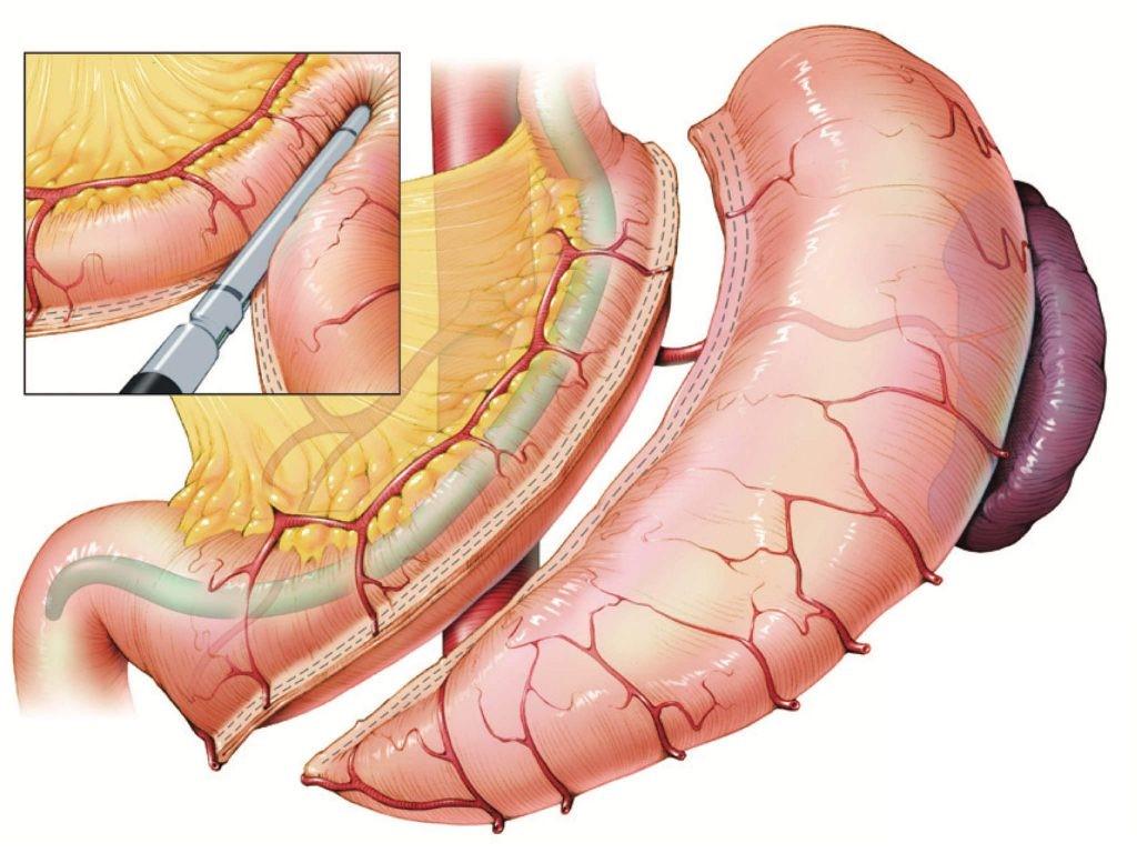 گام ششم: بعد از عمل جراحی اسلیو معده