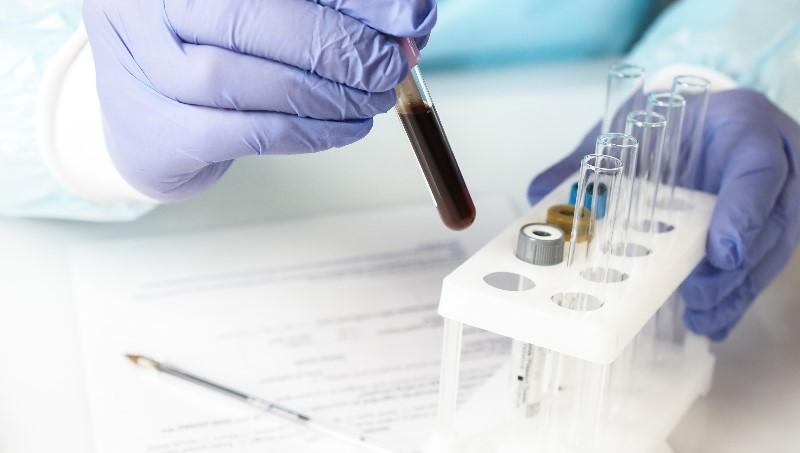 آیا در زمینه ی چاقی و باروری های آزمایشگاهی اطلاعاتی دارید؟